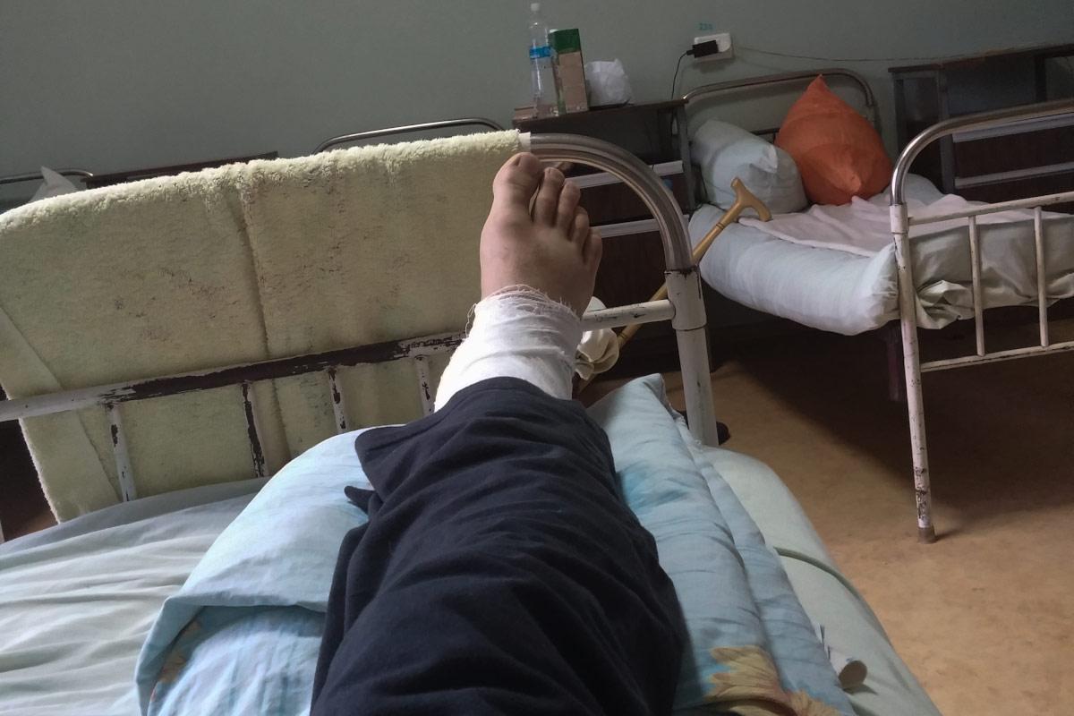 Нога, перелом, больница